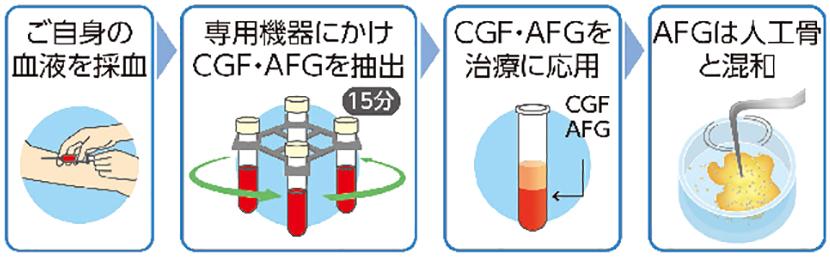 AFG‗CGF